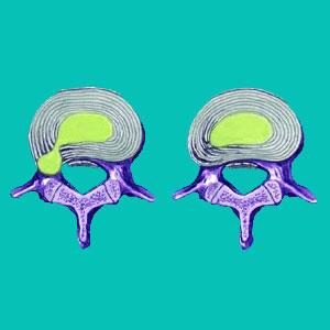 annulus fibrosus