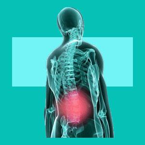 bulging disc symptoms