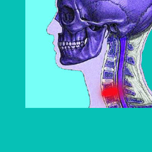 cervical herniated disc