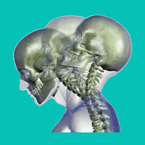 cervical herniated disc causes