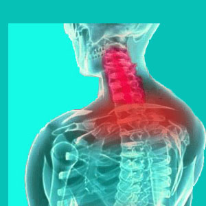 cervical herniated disc symptoms