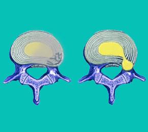 degenerative disc disease causes herniated discs