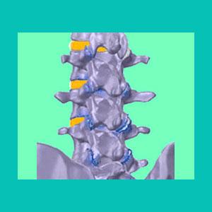 degenerative disc disease pain