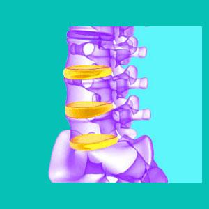 diagnosis of bulging discs