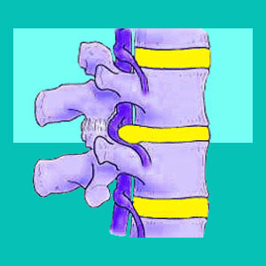 diffuse disc bulge