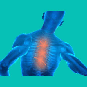 do herniated discs cause pain
