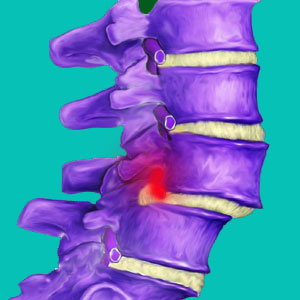does spondylolisthesis cause herniated discs
