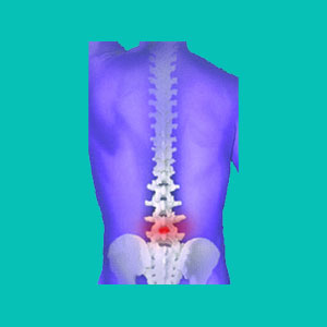 Glucosamine and Chondroitin for Herniated Discs
