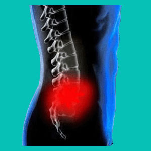 herniated disc flare up