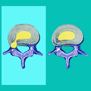 herniated disc guide
