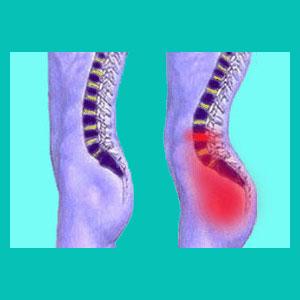 herniated disc hip pain