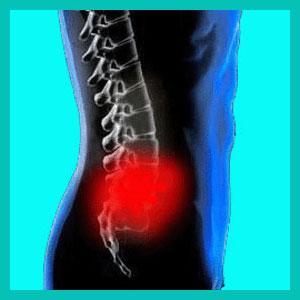 herniated disc injury