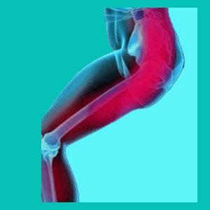 herniated disc leg cramps