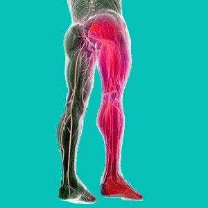 herniated disc leg pain