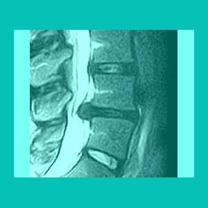 herniated disc myelopathy