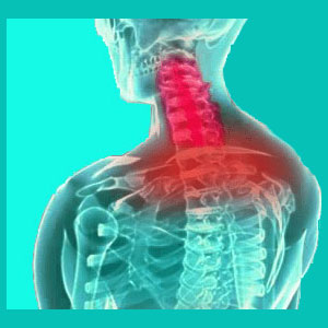 herniated disc neck pain