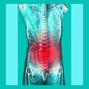 herniated disc recurrence