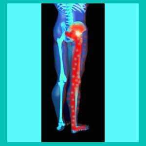 herniated disc tingling leg