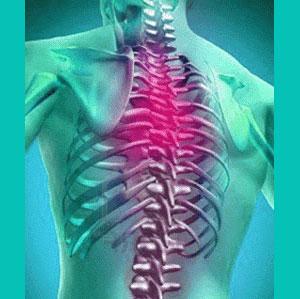 herniated disc upper back pain