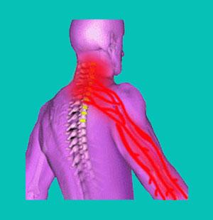 herniated disc weak arm