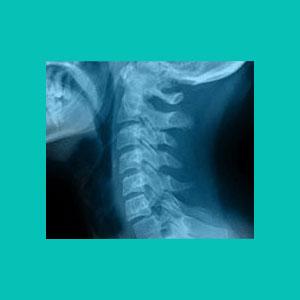 herniated disc x-ray