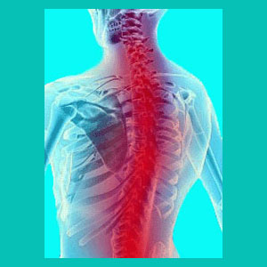 herniated discs and tension myositis syndrome