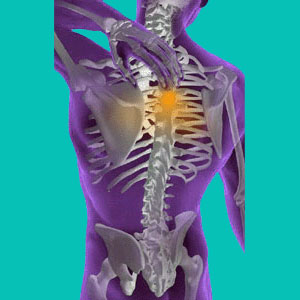 herniated disc solution