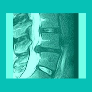 ligamentum flavum hypertrophy