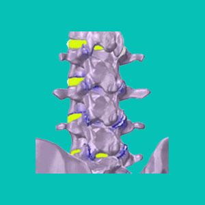 lumbar degenerative disc disease treatment