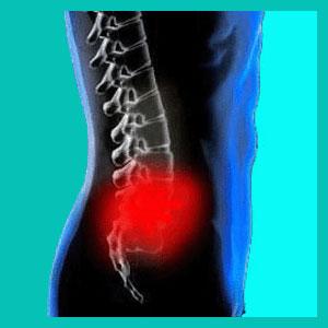 lumbar herniated disc diagnosis