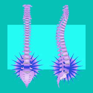 lumbar herniated disc injury