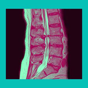 lumbar herniated disc spinal stenosis