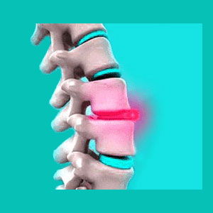 Nutritional Supplements for Herniated Discs