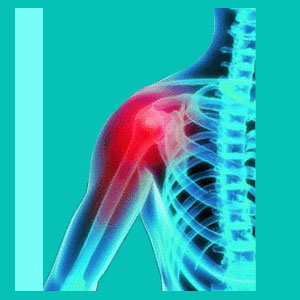 shoulder pain from herniated disc