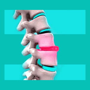 spinal disc inflammation