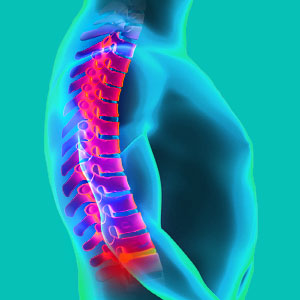 spinal disc reherniation