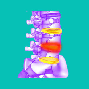 swollen spinal disc