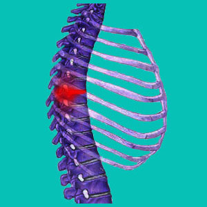 thoracic bulging disc