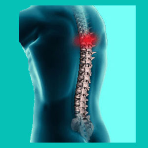 thoracic herniated disc diagnosis