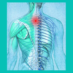 thoracic herniated disc injury